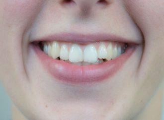 Zahnmedizin Studierende suchen Patienten